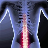 The University of Pittsburgh study, published online Monday in the Annals of Internal Medicine, found nearly equal success between physical therapy and decompression surgery for lumbar spinal stenosis, a degenerative condition that commonly occurs as people age.