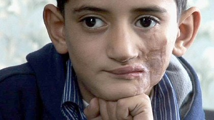 Abdul Hakeem Abdul Hakeem, 9, returns to Pittsburgh from Iraqi for the next stage of treatment.