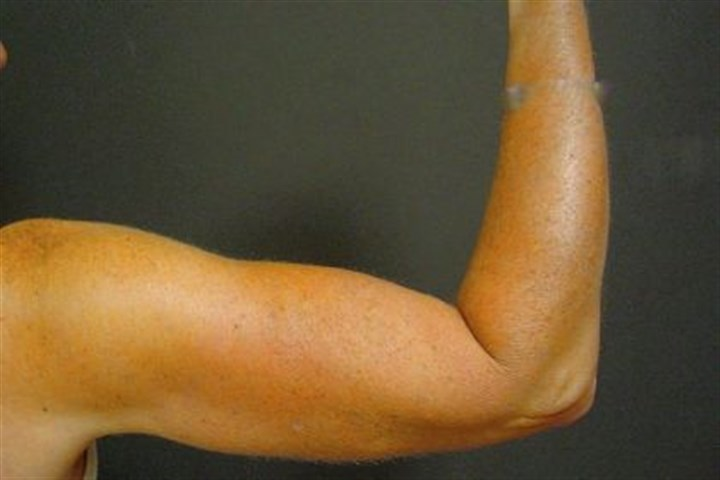 After Dr. Suzan Obagi's patient after upper-arm-lift surgery, also known as brachioplasty.
