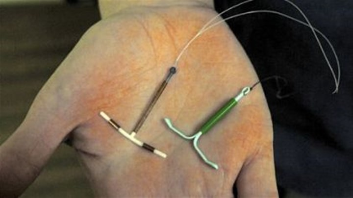 IUDs A copper-based ParaGard IUD, left, and a hormone-releasing Mirena IUD.