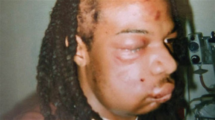 Jordan Miles Jordan Miles badly bruised head and face after being arrested by Pittsburgh police officers.