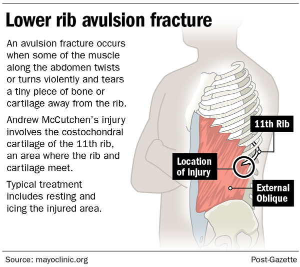 Lower rib avulsion fracture
