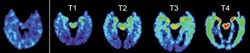 This combination of PET scans provided by UCLA on April 2, 2015 shows, from left, a normal brain scan and suspected Chronic Traumatic Encephalopathy (CTE) subjects.
