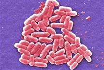 A colorized scanning electron micrograph image made in 2006 shows the O157:H7 strain of the E. coli bacteria.