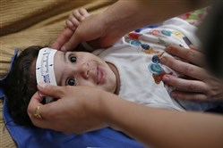 In this Feb. 24, 2016, file photo, 3-month-old Esther Kamilly has her head measured by Brazilian and U.S. health workers from the United States' Centers for Disease Control and Prevention at her home in Joao Pessoa, Brazil, as part of a study on the Zika virus and the birth defect microcephaly.