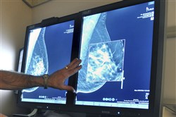 A radiologist compares an image from earlier, 2-D technology mammogram to the new 3-D Digital Breast Tomosynthesis mammography in Wichita Falls, Texas. The technology can detect much smaller cancers earlier. A study released Wednesday questions the value of mammograms for breast cancer screening.