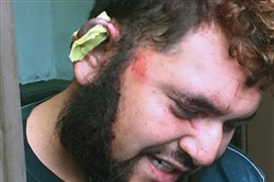 The man claiming that his ear was bitten by his roommate early Monday morning grimaces at the door of his Amber Street home.