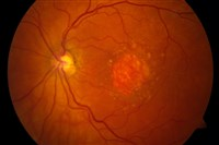 This image provided by the National Eye Institute shows a microscopic image of a retina being damaged.