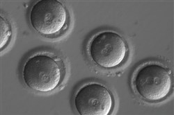 These newly fertilized eggs are about to undergo gene editing. In a major milestone sure to renew ethical concerns, scientists have successfully edited genes in human embryos to repair a common and serious disease-causing mutation, producing apparently healthy embryos, according to a study published in Wednesday in Nature.