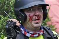 A white supremacist demonstrator, bloodied after a clash with a counter demonstrator, talks on a radio receiver in Charlottesville, Va., Saturday.