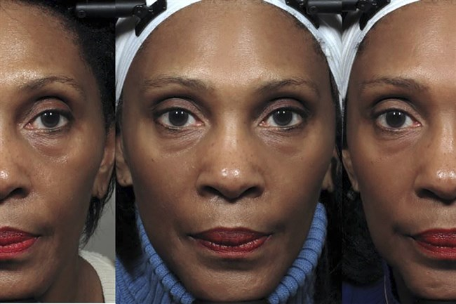 A photo from the Northwestern University Feinberg School of Medicine of a test subject, whose upper cheeks and bags under the eyes modestly improved starting at week eight, center, and, by week 20, right.